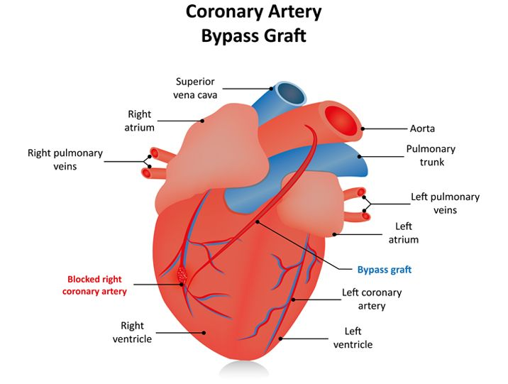 heart structure after coronary artery bypass graft infographic