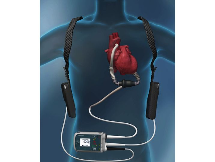 left ventricular assist device implant lvad