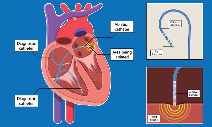 Cardiac ablation procedure