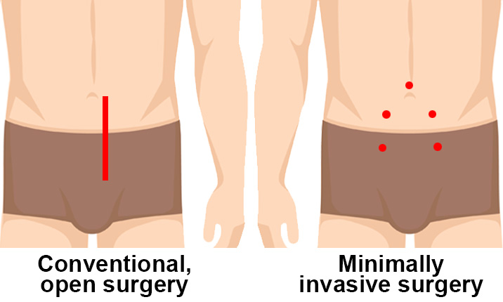 Minimally invasive prostatectomy - Benefits